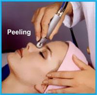 Rebolo Peeling